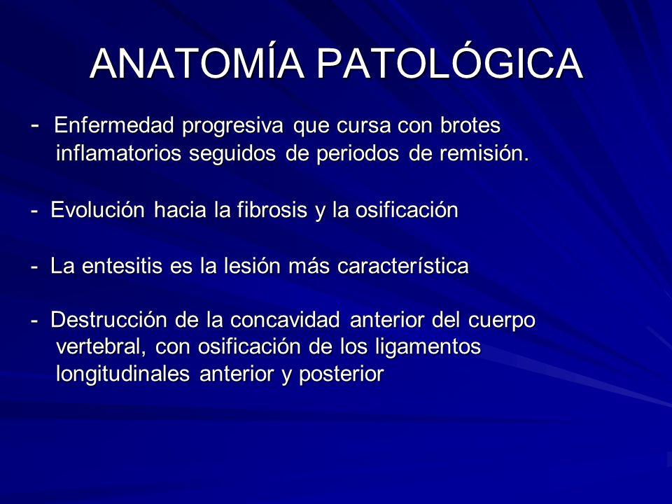 ANATOMÍA PATOLÓGICA - Enfermedad progresiva que cursa con brotes inflamatorios seguidos de periodos de remisión. - Evolución hacia la fibrosis y la os