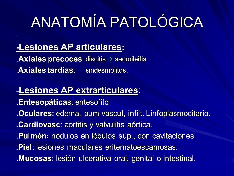 ANATOMÍA PATOLÓGICA. - Lesiones AP articulares :.Axiales precoces : discitis sacroileitis. Axiales tardías : sindesmofitos. - Lesiones AP extrarticula