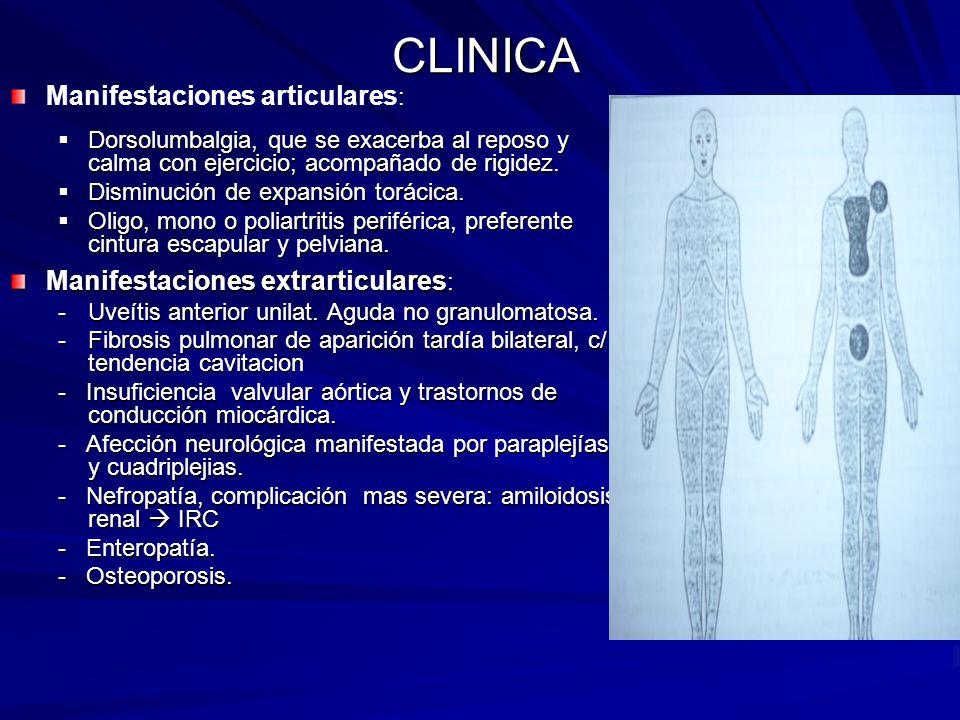 CLINICA : Manifestaciones articulares : Dorsolumbalgia, que se exacerba al reposo y calma con ejercicio; acompañado de rigidez. Dorsolumbalgia, que se