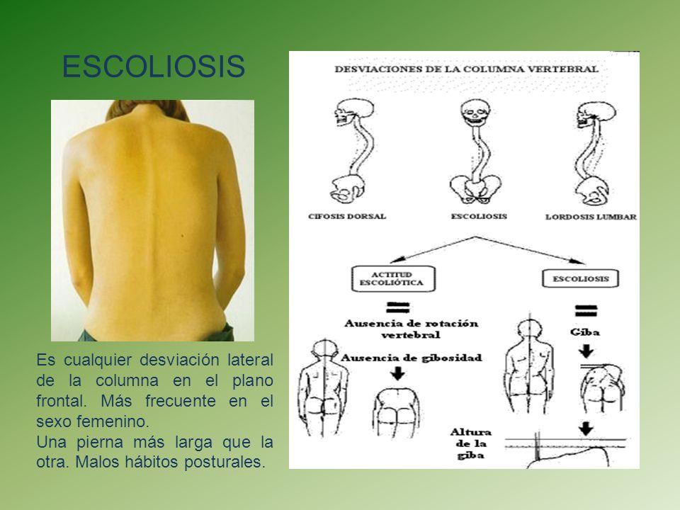 CifosisHiperlordosis Es un aumento de la curvatura dorsal por causas patológicas.