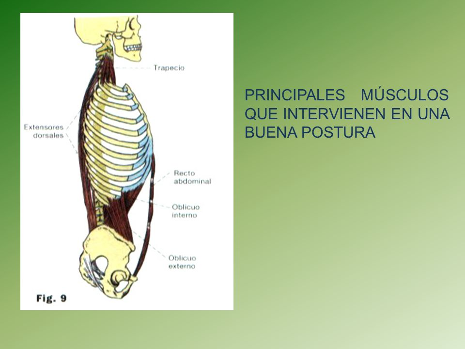 ESCOLIOSIS Es cualquier desviación lateral de la columna en el plano frontal.