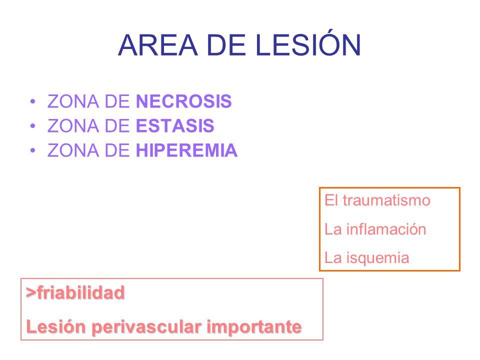 AREA DE LESIÓN ZONA DE NECROSIS ZONA DE ESTASIS ZONA DE HIPEREMIA >friabilidad Lesión perivascular importante El traumatismo La inflamación La isquemia Acland, R.