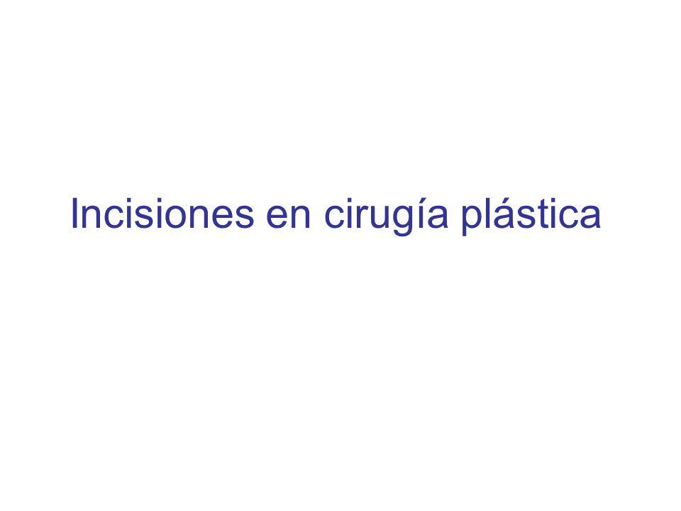 Incisiones en cirugía plástica