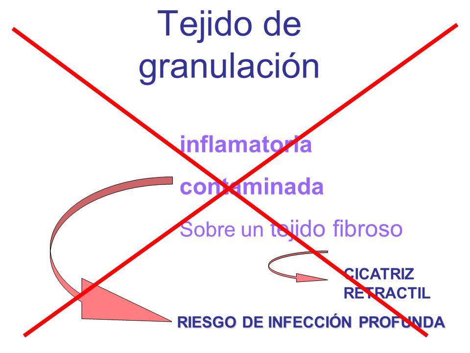 Tejido de granulación Es una respuesta inflamatoria contaminada Sobre un tejido fibroso RIESGO DE INFECCIÓN PROFUNDA CICATRIZ RETRACTIL