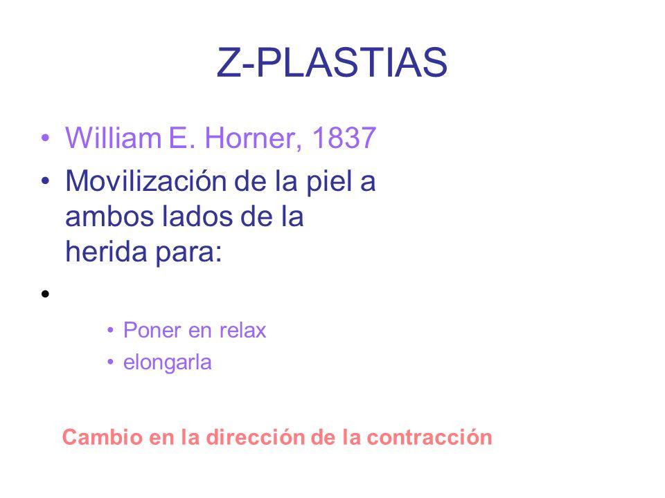 Z-PLASTIAS William E.