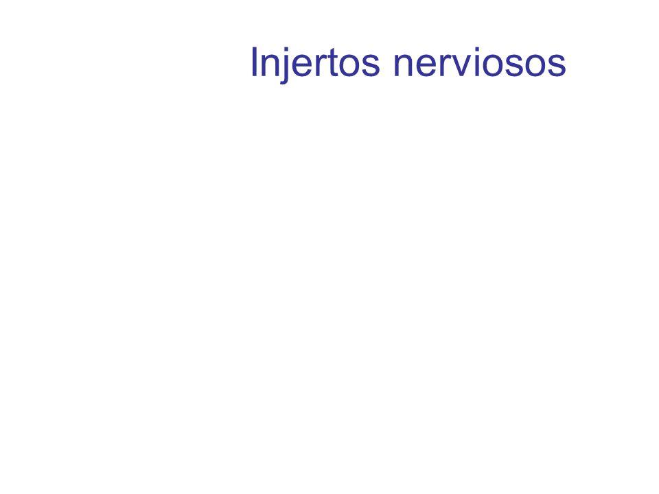 Injertos nerviosos