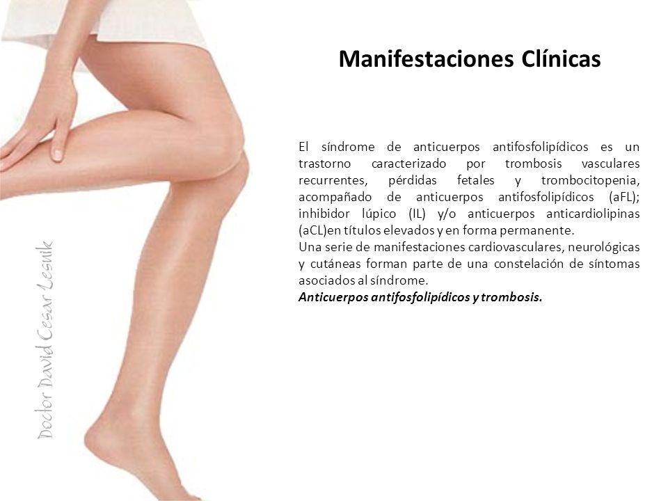 Manifestaciones Clínicas El síndrome de anticuerpos antifosfolipídicos es un trastorno caracterizado por trombosis vasculares recurrentes, pérdidas fe