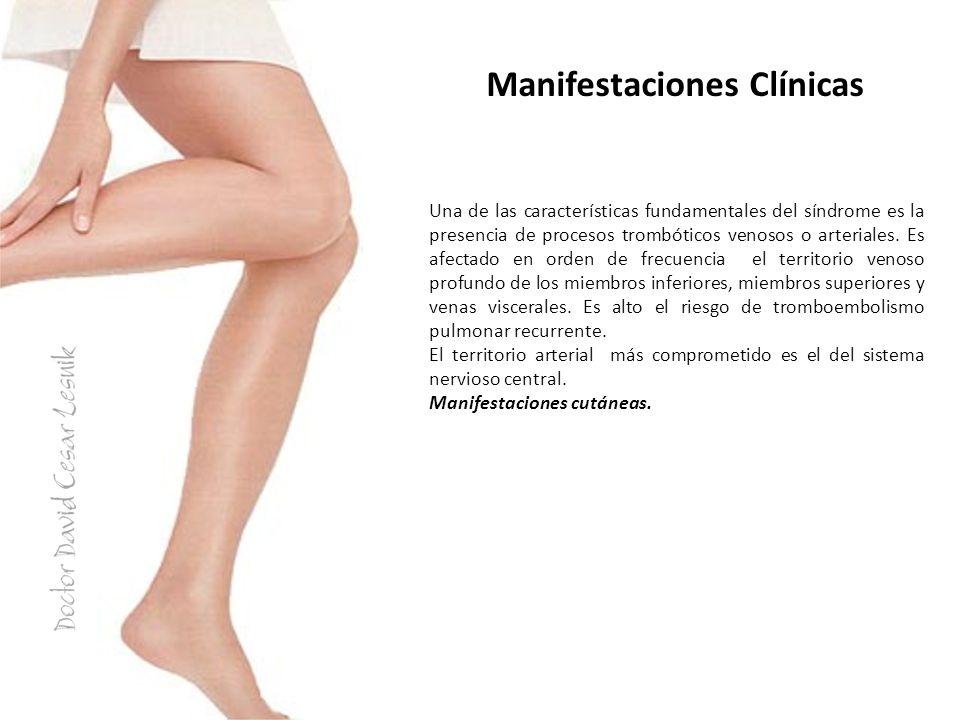 Manifestaciones Clínicas Una de las características fundamentales del síndrome es la presencia de procesos trombóticos venosos o arteriales. Es afecta