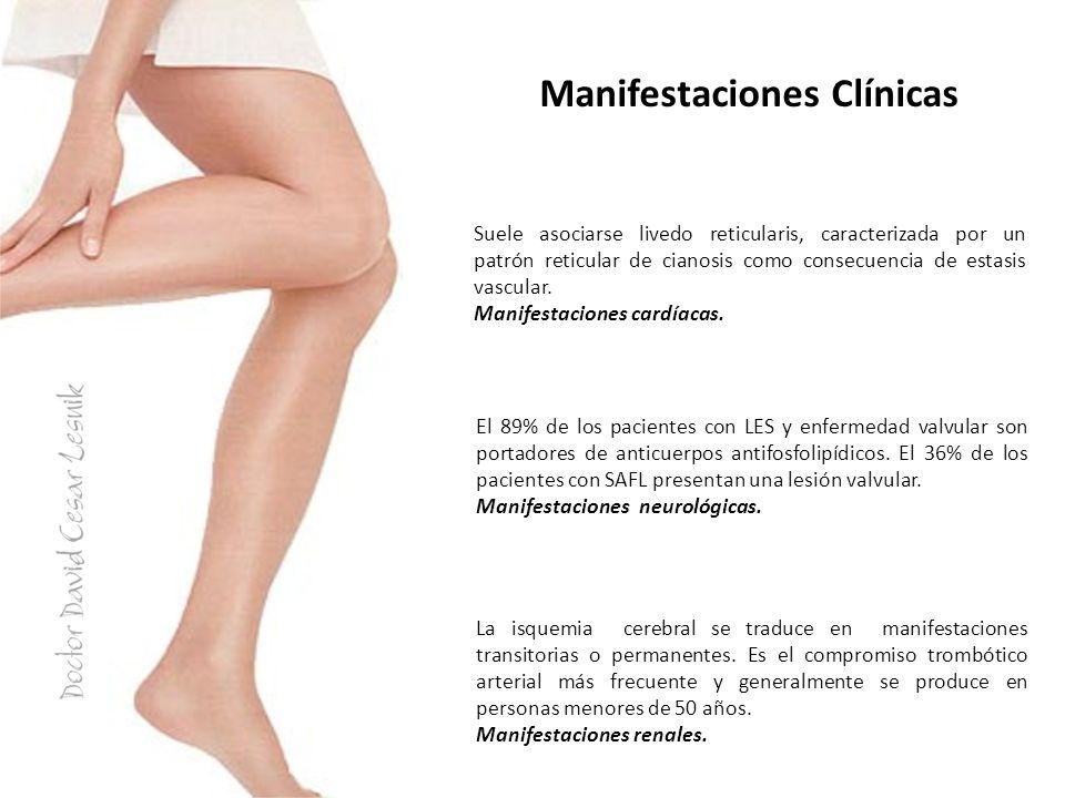 Manifestaciones Clínicas La prevalencia es cercana al 25% y se destacan los fenómenos oclusivos no inflamatorios de los vasos pequeños.
