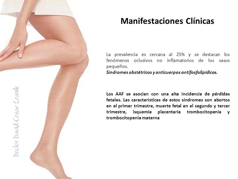 Manifestaciones Clínicas La prevalencia es cercana al 25% y se destacan los fenómenos oclusivos no inflamatorios de los vasos pequeños. Síndromes obst