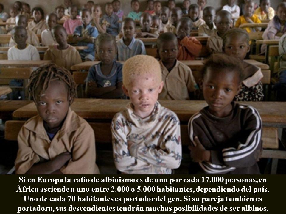 Hay más albinos en África que en cualquier otra parte del mundo. De hecho, los primeros colonizadores portugueses los designaron como una raza aparte.