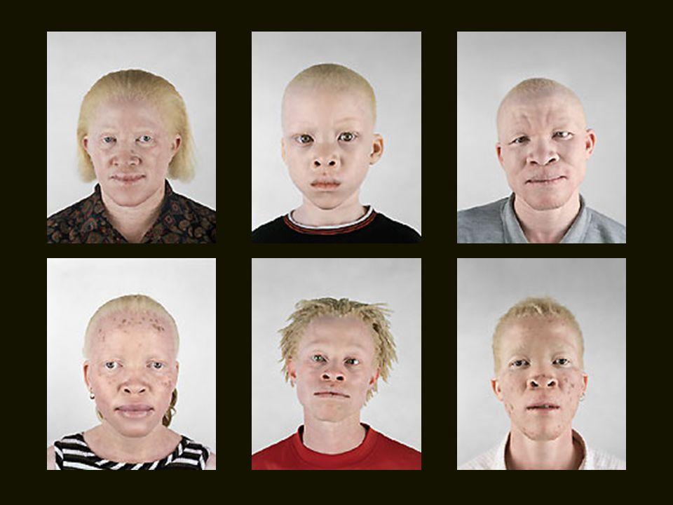 Si en Europa la ratio de albinismo es de uno por cada 17.000 personas, en África asciende a uno entre 2.000 o 5.000 habitantes, dependiendo del país.