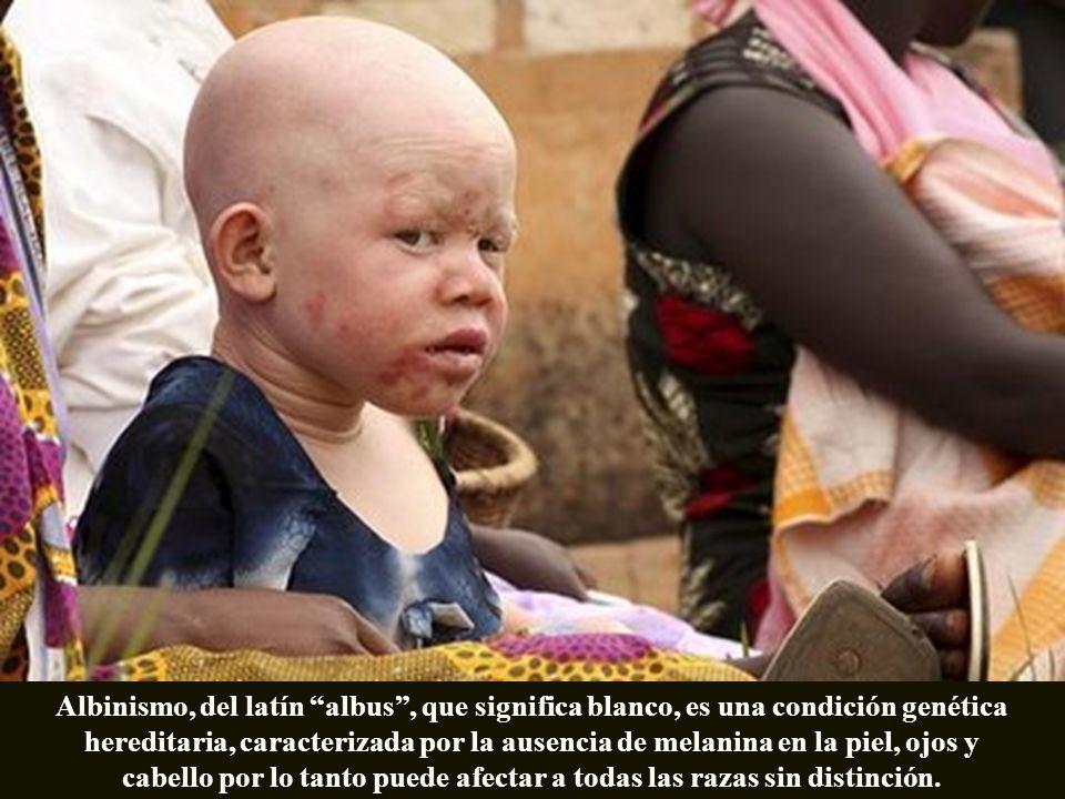 Albinismo, del latín albus, que significa blanco, es una condición genética hereditaria, caracterizada por la ausencia de melanina en la piel, ojos y cabello por lo tanto puede afectar a todas las razas sin distinción.