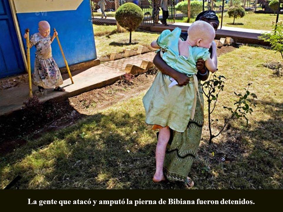 Bibiana fue amputada de noche por la gente que cree que partes de cuerpo de Albino usadas en conjunción con otras medicinas tradicionales pueden ayuda