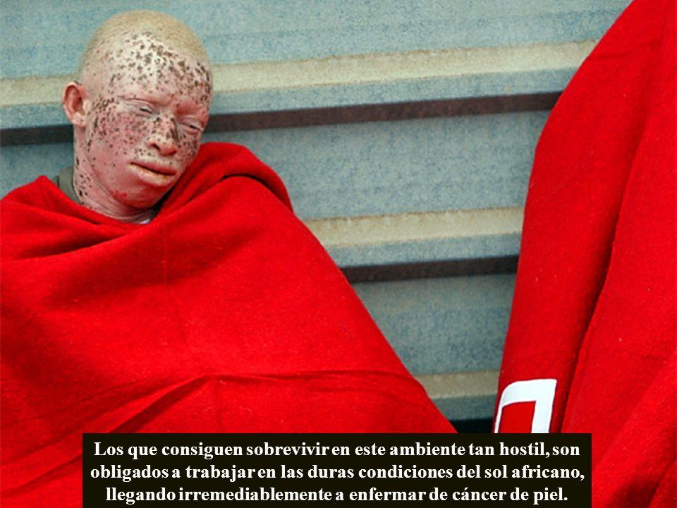 Un dermatólogo aplica un tratamiento con crioterapia a un pequeño albino que presenta una queratosis actínica, una lesión precancerosa.