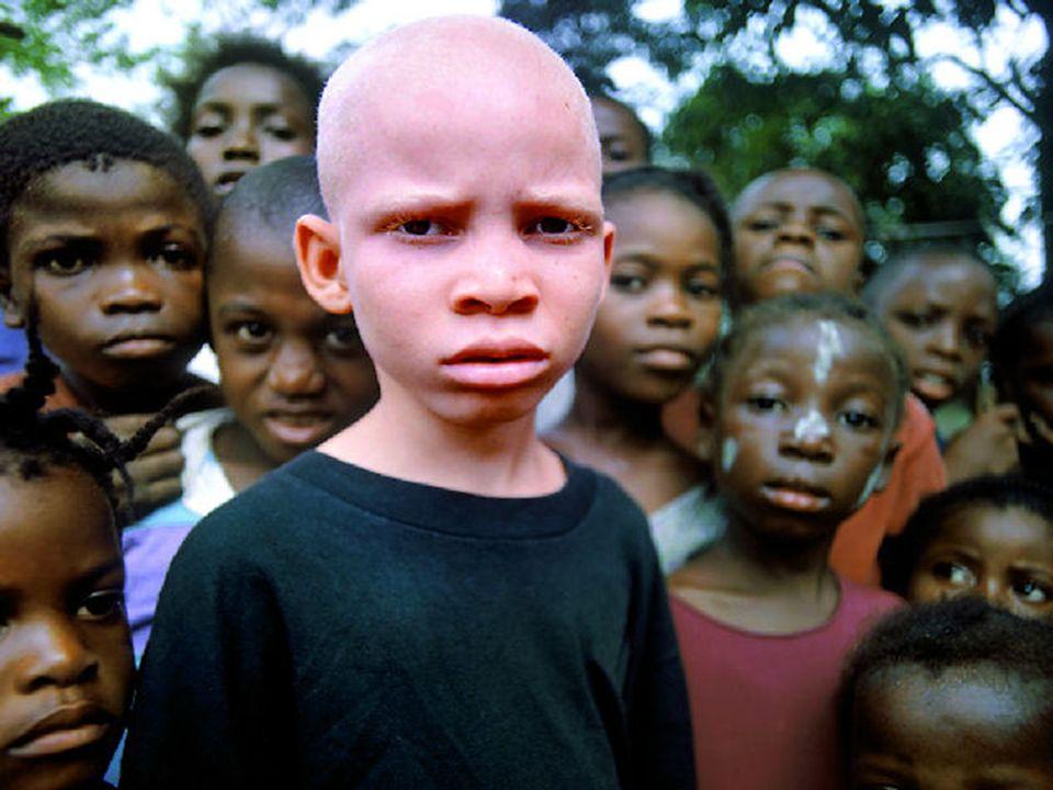 Albinismo, del latín albus, que significa blanco, es una condición genética hereditaria, caracterizada por la ausencia de melanina en la piel, ojos y
