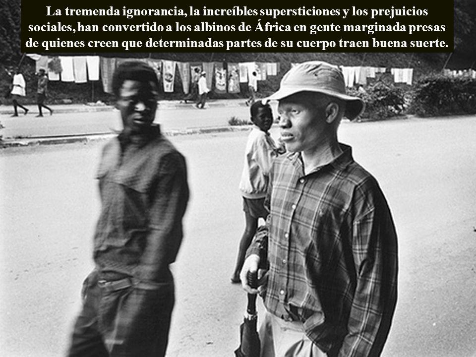 La tremenda ignorancia, la increíbles supersticiones y los prejuicios sociales, han convertido a los albinos de África en gente marginada presas de quienes creen que determinadas partes de su cuerpo traen buena suerte.
