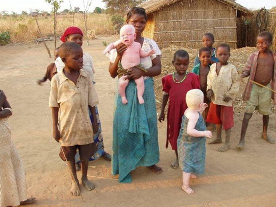 La tremenda ignorancia, la increíbles supersticiones y los prejuicios sociales, han convertido a los albinos de África en gente marginada presas de qu