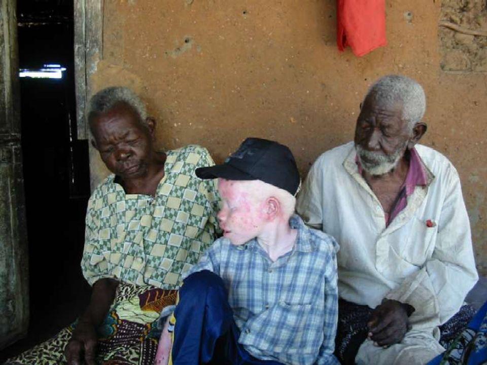 El Gobierno de Tanzania ha ilegalizado la curandería, para evitar que continúe la cacería de albinos.