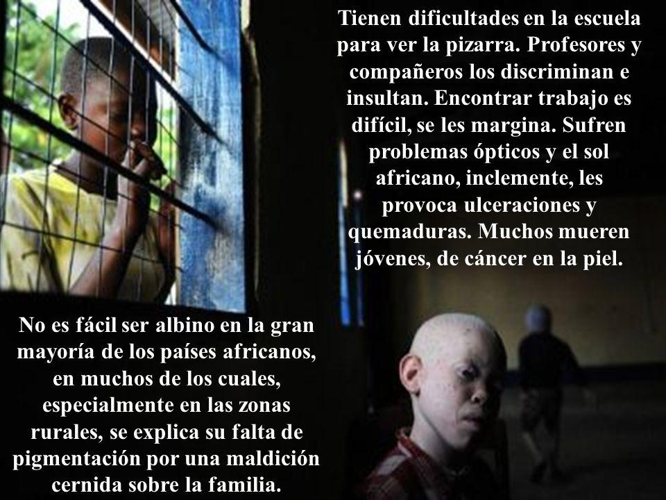 Un negro albino llegado en cayuco a Tenerife, pide asilo para huir de los brujos