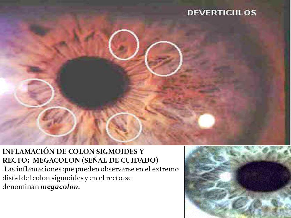 INFLAMACIÓN DE COLON SIGMOIDES Y RECTO: MEGACOLON (SEÑAL DE CUIDADO) Las inflamaciones que pueden observarse en el extremo distal del colon sigmoides