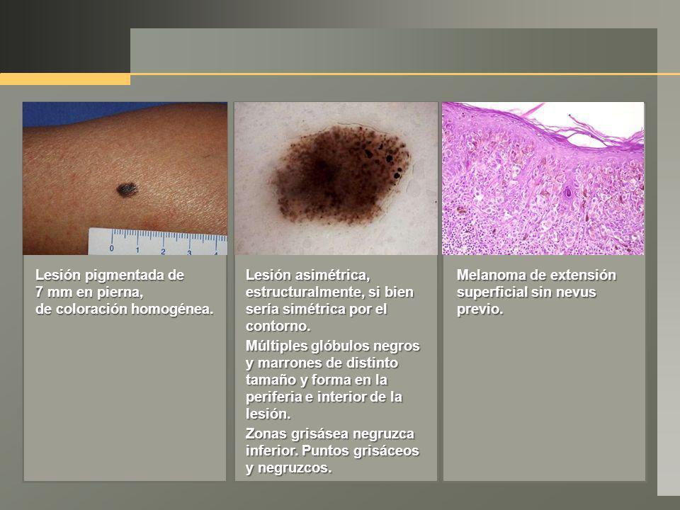 Lesión pigmentada de 7 mm en pierna, de coloración homogénea. Lesión asimétrica, estructuralmente, si bien sería simétrica por el contorno. Múltiples