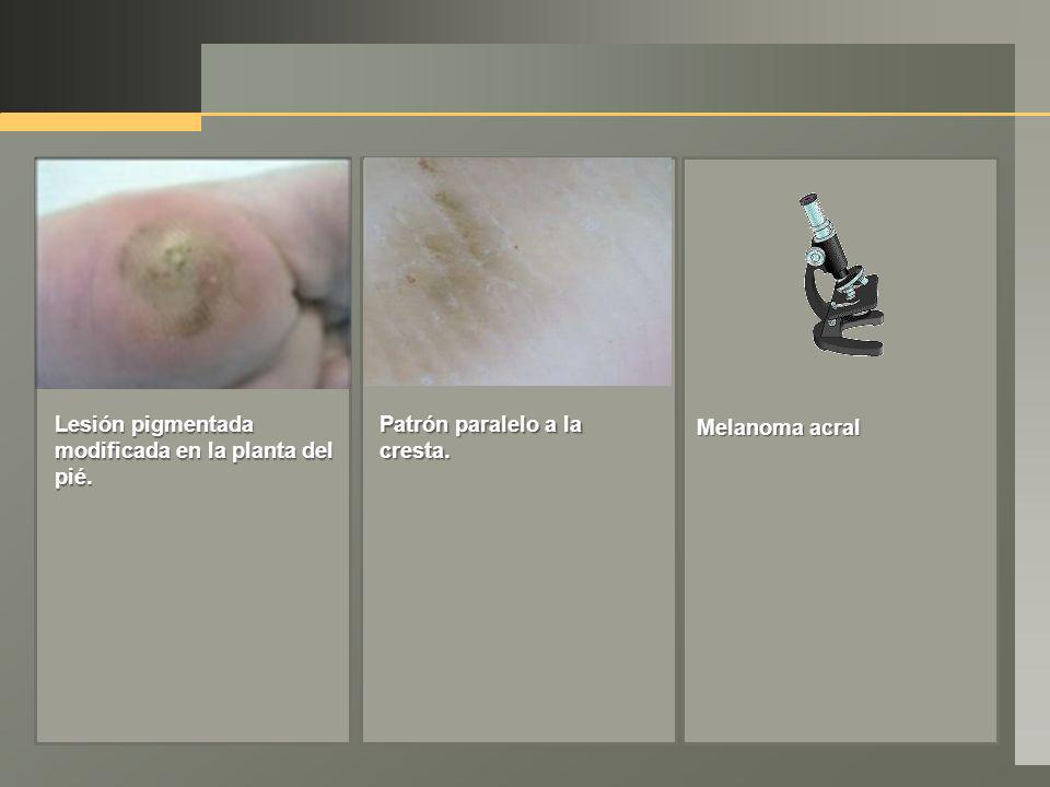 Lesión pigmentada modificada en la planta del pié. Patrón paralelo a la cresta. Melanoma acral