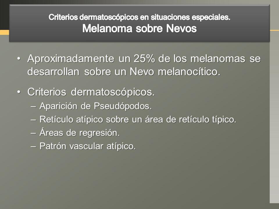Aproximadamente un 25% de los melanomas se desarrollan sobre un Nevo melanocítico.Aproximadamente un 25% de los melanomas se desarrollan sobre un Nevo