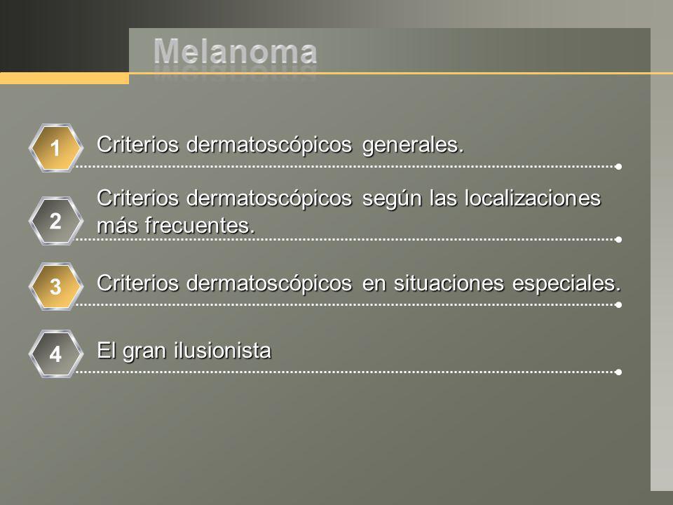 Criterios dermatoscópicos generales. Criterios dermatoscópicos según las localizaciones más frecuentes. Criterios dermatoscópicos en situaciones espec
