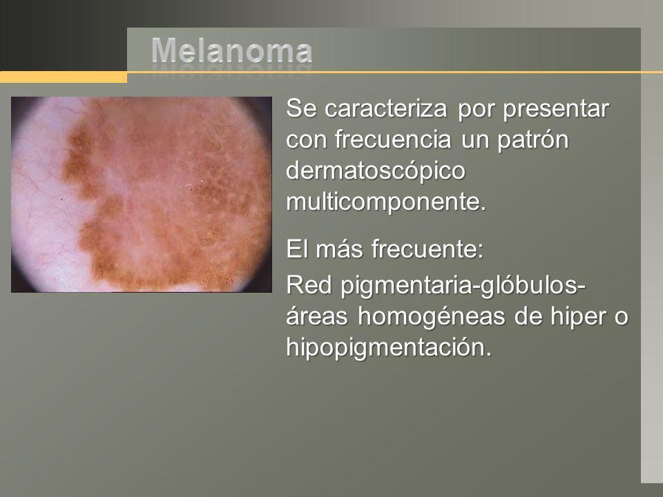 Se caracteriza por presentar con frecuencia un patrón dermatoscópico multicomponente. El más frecuente: Red pigmentaria-glóbulos- áreas homogéneas de