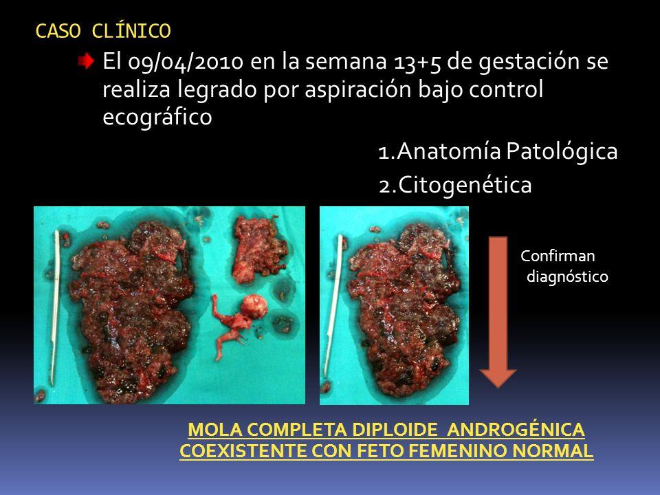 CASO CLÍNICO El 09/04/2010 en la semana 13+5 de gestación se realiza legrado por aspiración bajo control ecográfico 1.Anatomía Patológica 2.Citogenéti