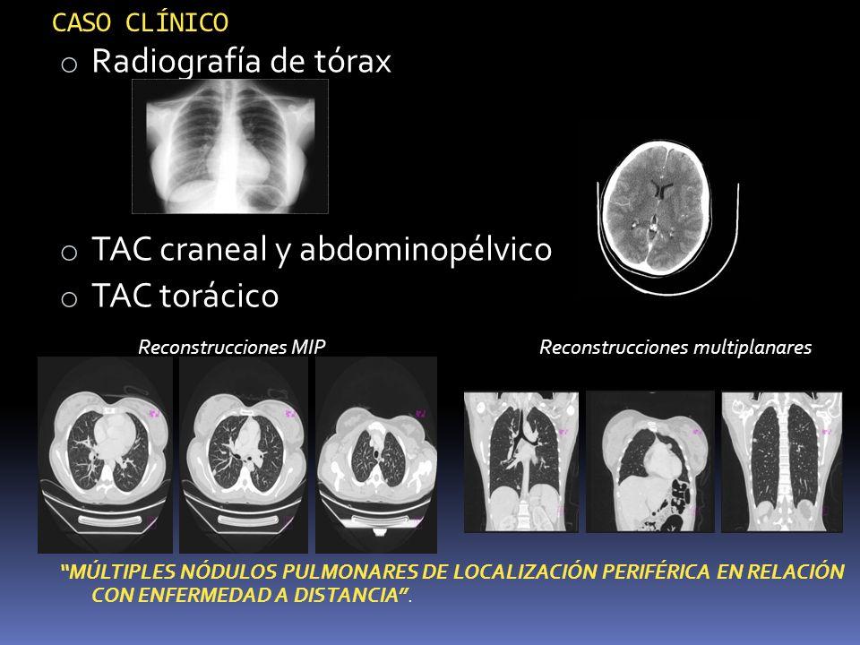 CASO CLÍNICO o Radiografía de tórax o TAC craneal y abdominopélvico o TAC torácico Reconstrucciones MIP Reconstrucciones multiplanares MÚLTIPLES NÓDUL