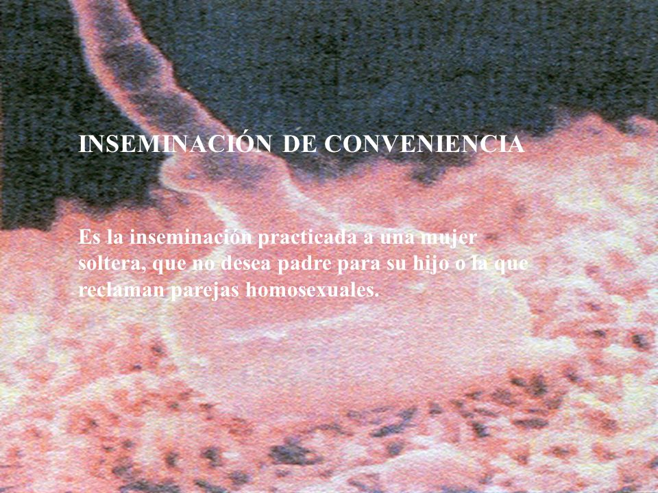 16 INSEMINACIÓN DE CONVENIENCIA Es la inseminación practicada a una mujer soltera, que no desea padre para su hijo o la que reclaman parejas homosexua