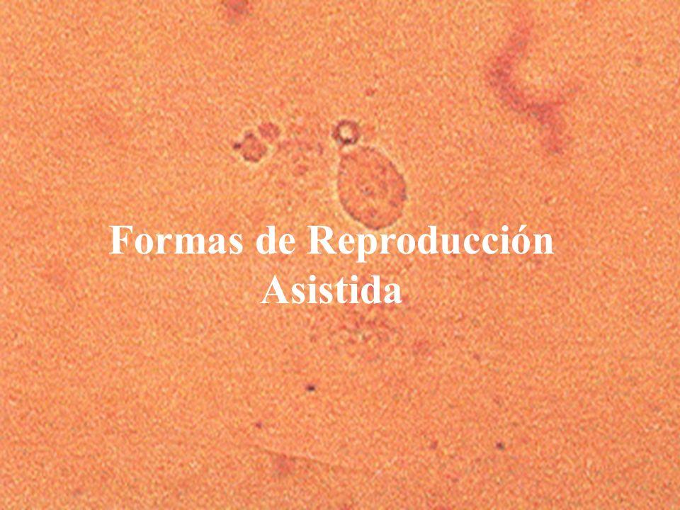 3 Formas de Reproducción Asistida