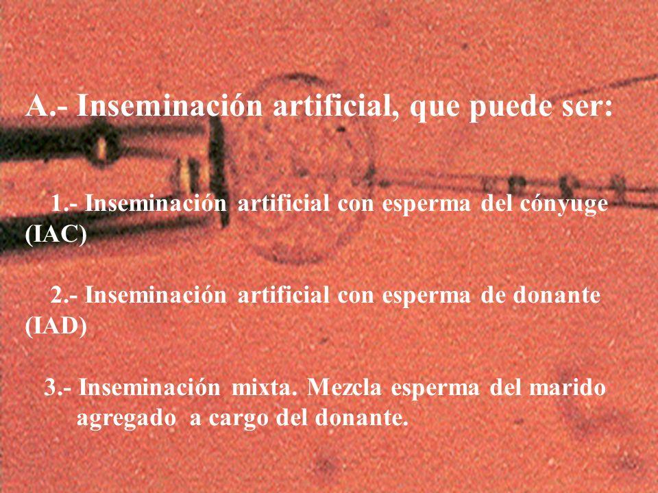 4 A.- Inseminación artificial, que puede ser: 1.- Inseminación artificial con esperma del cónyuge (IAC) 2.- Inseminación artificial con esperma de don