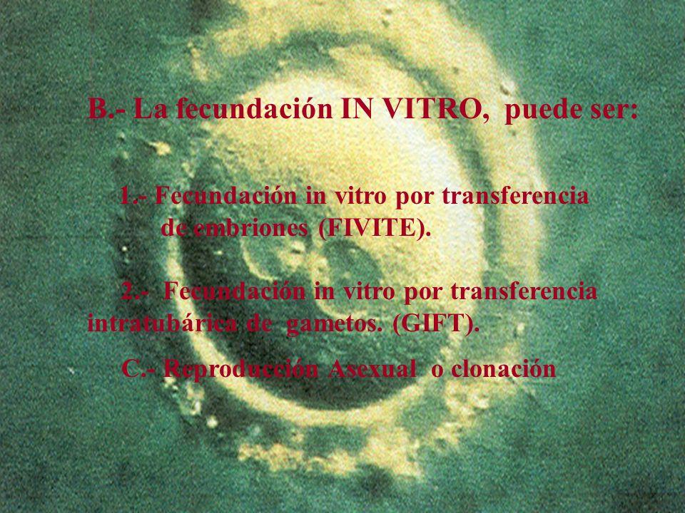5 B.- La fecundación IN VITRO, puede ser: 1.- Fecundación in vitro por transferencia de embriones (FIVITE). 2.- Fecundación in vitro por transferencia