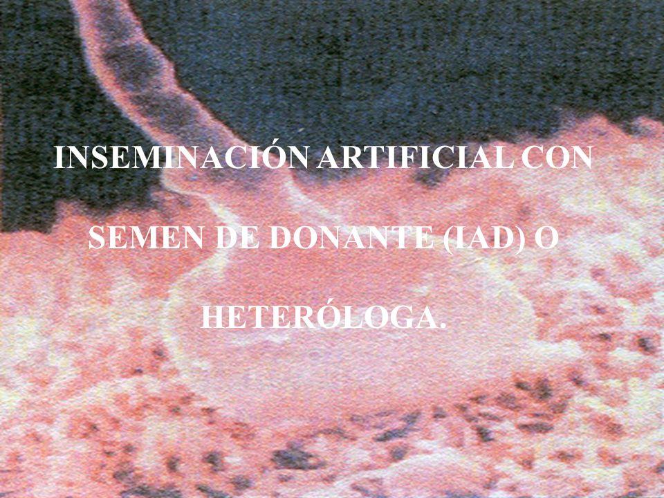 9 INSEMINACIÓN ARTIFICIAL CON SEMEN DE DONANTE (IAD) O HETERÓLOGA.