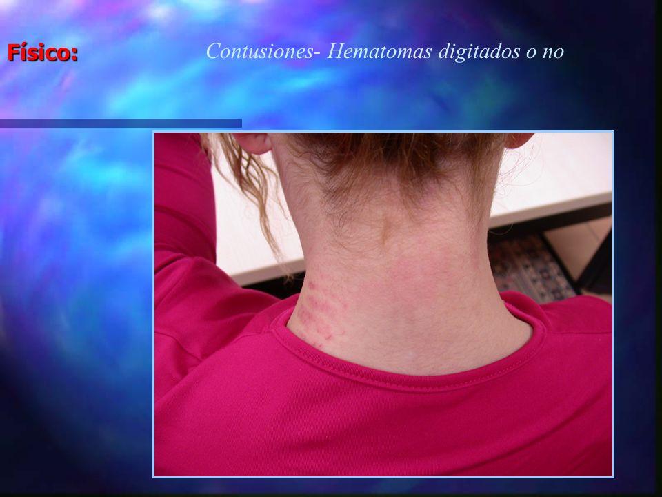Físico: Agarrones - Hematomas digitados