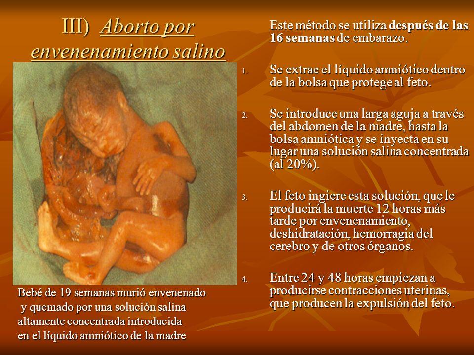III) Aborto por envenenamiento salino Este método se utiliza después de las 16 semanas de embarazo. 1. Se extrae el líquido amniótico dentro de la bol