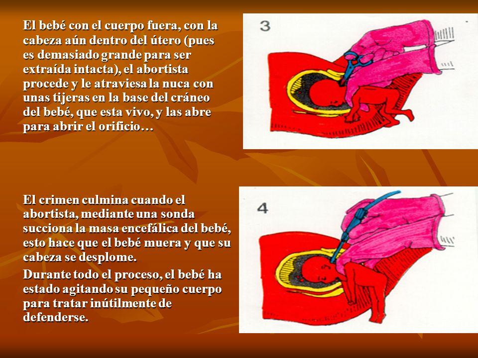 El bebé con el cuerpo fuera, con la cabeza aún dentro del útero (pues es demasiado grande para ser extraída intacta), el abortista procede y le atravi