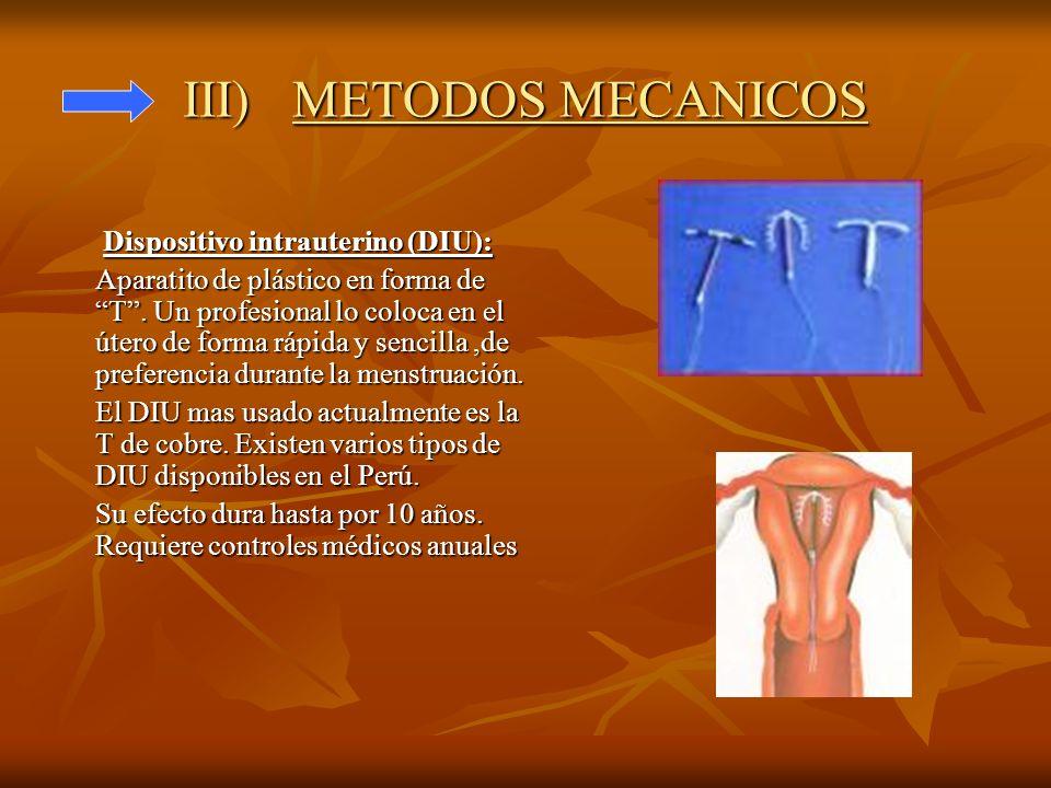 III) METODOS MECANICOS Dispositivo intrauterino (DIU): Aparatito de plástico en forma de T. Un profesional lo coloca en el útero de forma rápida y sen