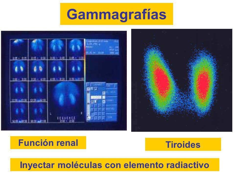 Función renal Gammagrafías Tiroides Inyectar moléculas con elemento radiactivo