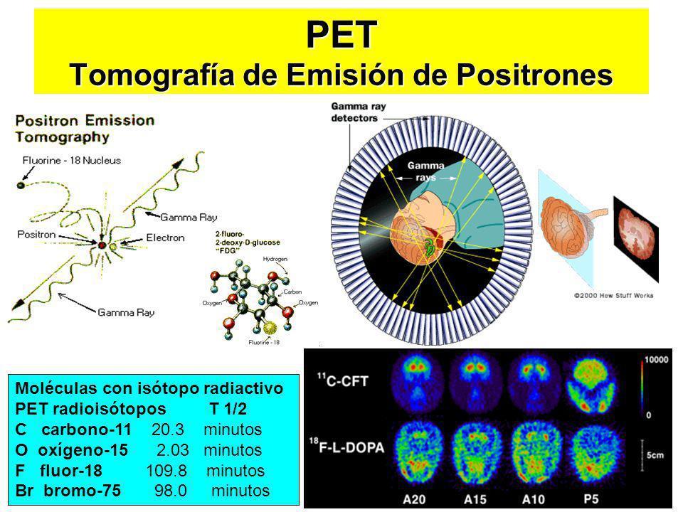 PET Tomografía de Emisión de Positrones Moléculas con isótopo radiactivo PET radioisótopos T 1/2 C carbono-11 20.3 minutos O oxígeno-15 2.03 minutos F