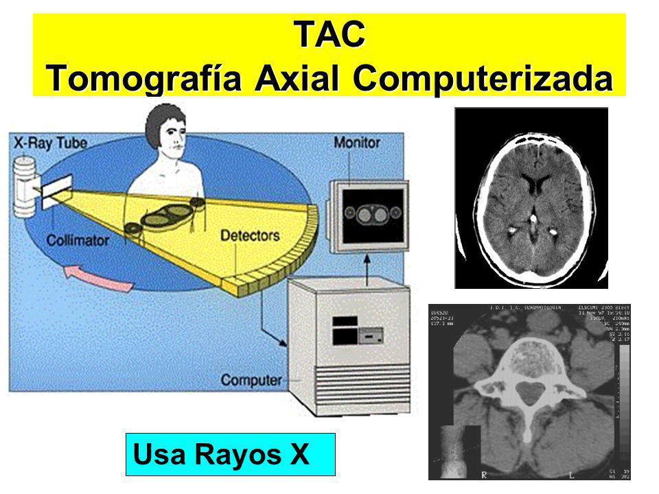 TAC Tomografía Axial Computerizada Usa Rayos X