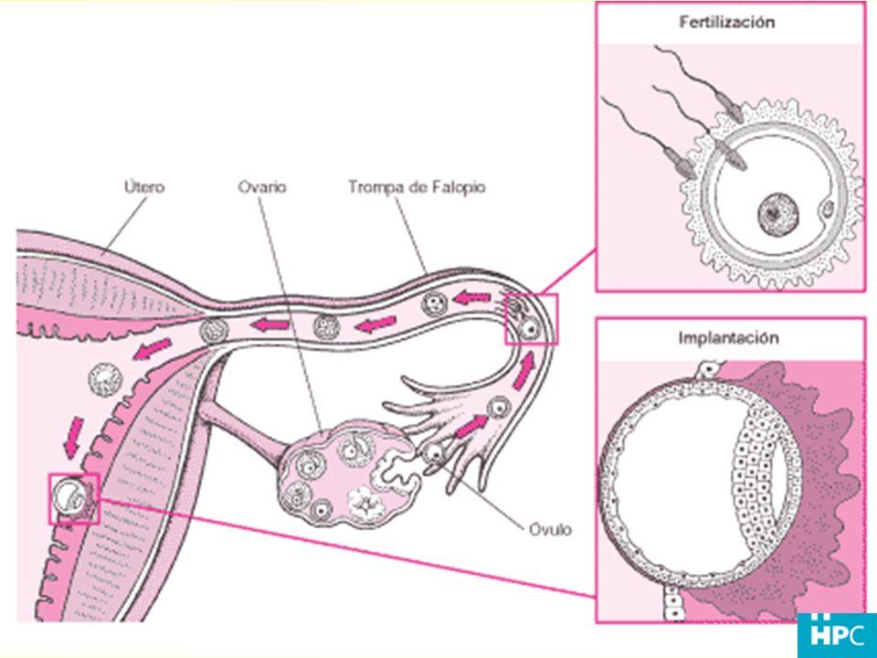 Interfiere con la habilidad del esperma de alcanzar y fertilizar el óvulo.
