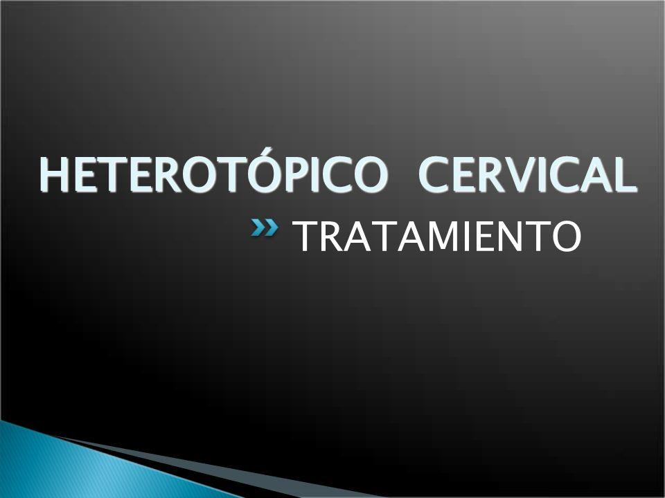HETEROTÓPICO CERVICAL TRATAMIENTO