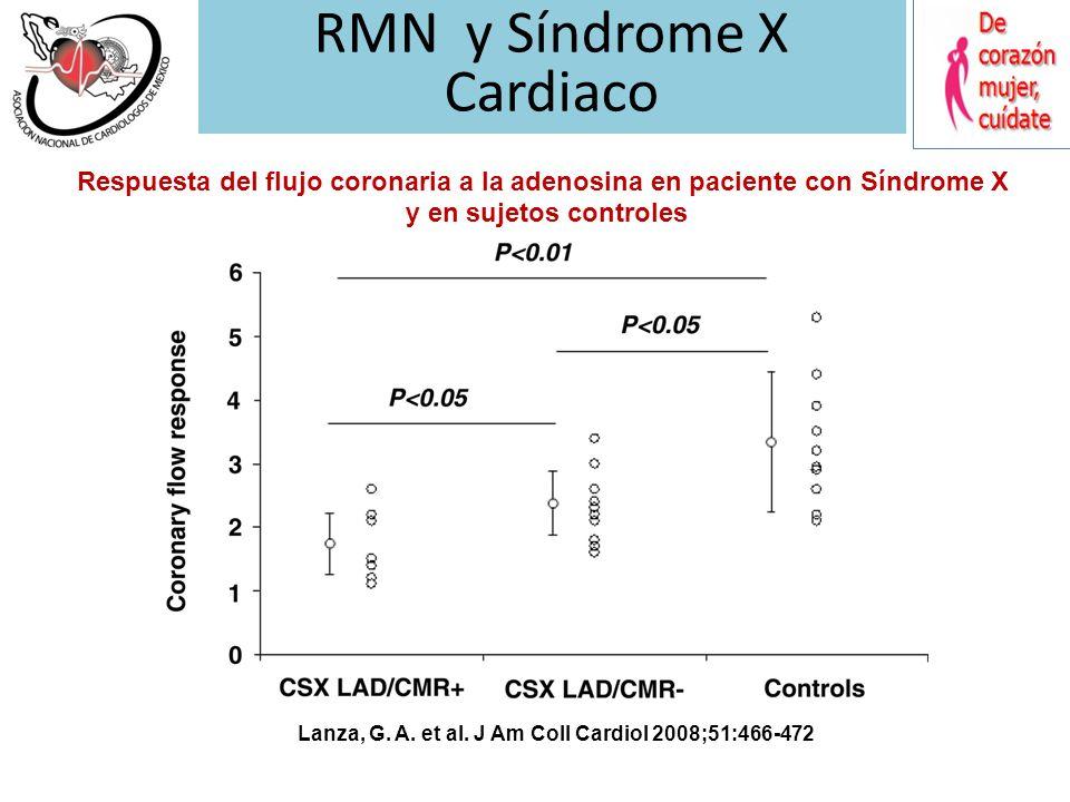 Diagnostico Episodios de angina de duración variable (> 10 minutos postesfuerzo) Respuesta inconstante a la nitroglicerina Depresión segmento ST y ang
