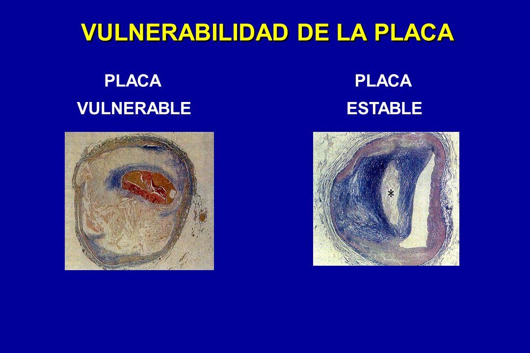 VULNERABILIDAD DE LA PLACA PLACA VULNERABLE PLACA ESTABLE