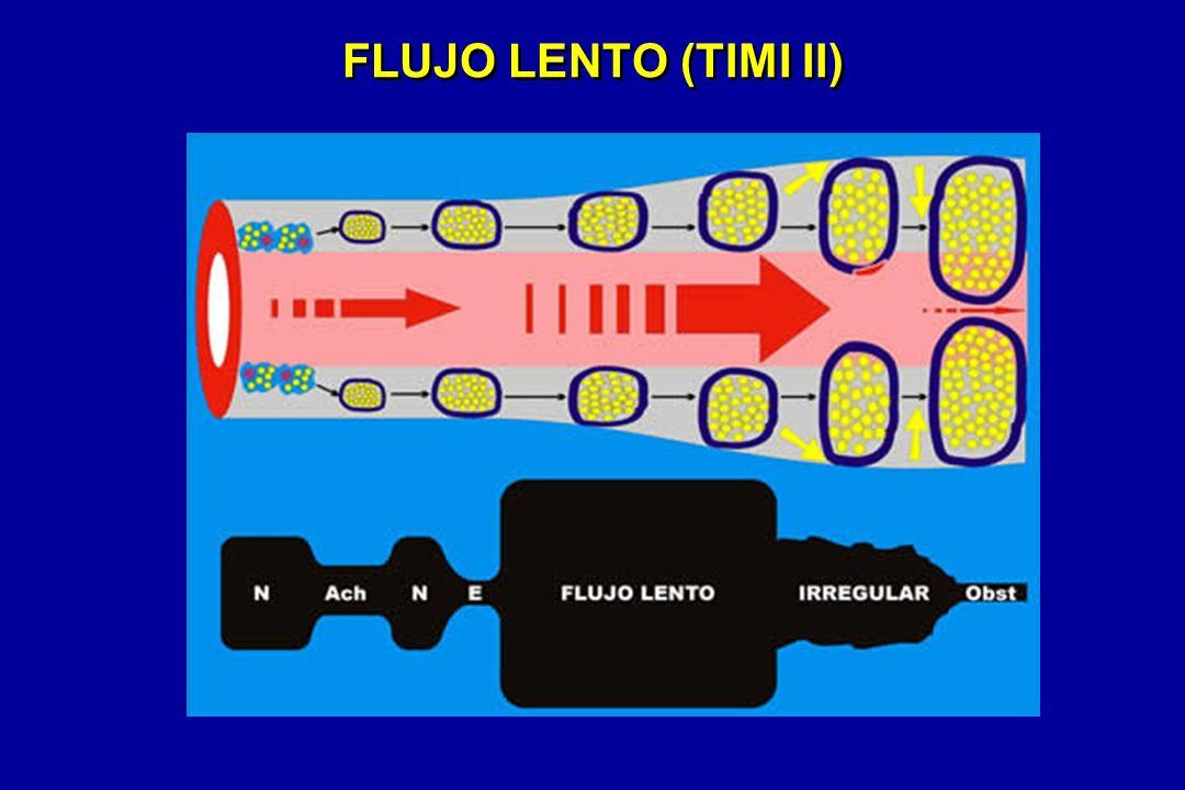 FLUJO LENTO (TIMI II)