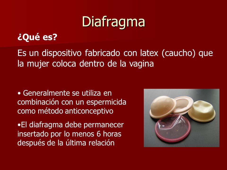 Diafragma Generalmente se utiliza en combinación con un espermicida como método anticonceptivo. El diafragma debe permanecer insertado por lo menos 6